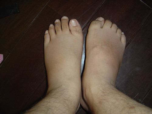 二隻腳一起比較