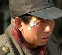 Chinese man wearing a cap and a bandaid