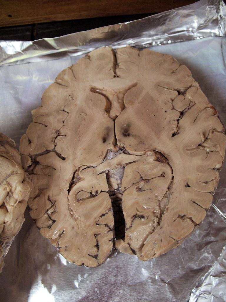 The World's Best Photos of brain and neuroanatomy - Flickr ...