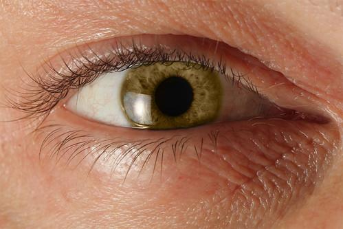 Golden-Eye