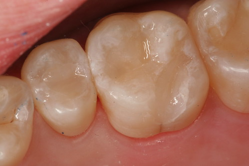 Dental Care: Tooth Cavities