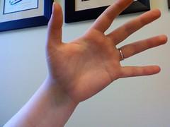 my nearly-broken hand