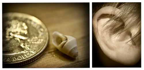 Pesky Things, those Earshells