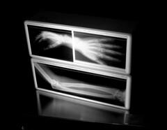 X Ray B&W (JTContinental) Tags: seattle light urban blackandwhite skeleton creepy xray bone challengeyouwinner photofaceoffwinner photofaceoffplatinum pfogold pfoplatinum feb09pfobrackets herowinner