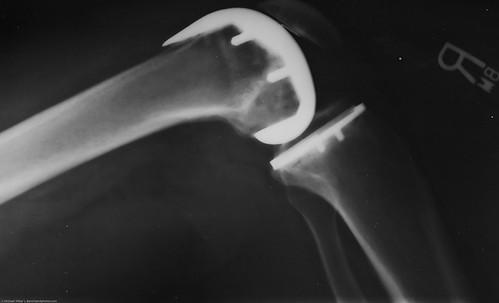 Zimmer NexGen Knee Implant Recalls Spark Lawsuits Nationwide 1