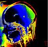 Do you find my brain? - Auf der Suche nach meinem Gehirn (Daniela Hartmann (alles-schlumpf)) Tags: colour face mouth pain gesicht head ct brain drugs colourful sinn cranium ich psychiatrie nase angst psyche bunt medizin mund seele krank innenleben kopf drogen klug haupt panik gesundheit ingenious denken röntgen wesen aufmerksamkeit schädel farbenfroh temperament radiograph caput gehirn medikament nouse droge cranial gesund hirn gemüt erkenntnis bewusstsein gedächtnis krankheit phobie schlau intellekt röntgenbild verstand gialloblu erkrankung demenz gehirnmasse neurologic computertomographie ängste jaunebleu amarilloazul fähigkeit jellowblue innerlich phobien denkvermögen angststörungen angsterkrankungen zerebrum röntgentomographie schädelwärts