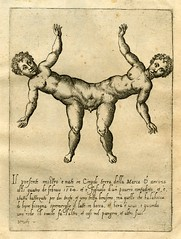 Male twins conjoined at the pelvis (Kintzertorium) Tags: italy monster twins engraving deformed 1585 kintzertorium giovannibattistadecavalieri
