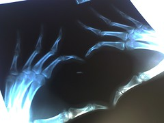 Heart Shape X-Ray (Film Both Hands) /เอ็กซเรย์รูปหัวใจ