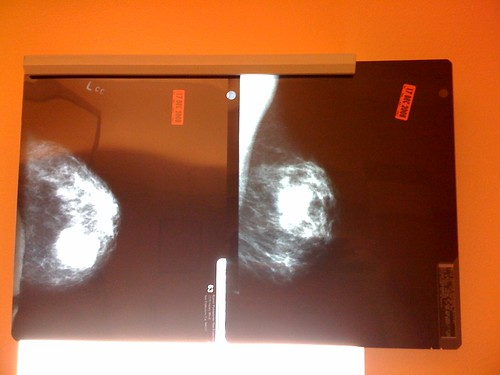 Kiki Gets a Mammogram