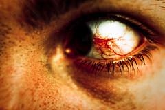 034 - Slits (Alex Shahmiri) Tags: selfportrait eye blood vision vein bleeding bloodvessel 34365 thankfullymyeyedoesnthurtandicanstillseefineijustgetstaredat acrowjustflewbymywindowanditwasthesizeoflikeadinosaur