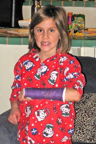 She broke her wrist!