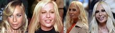 Desastres de cirurgia plstica de celebridades - Donatella Versace (Blogpaedia) Tags: beleza medicina celebridades desastre aparncia cosmtica cirurgiaplstica