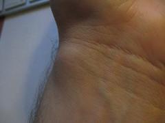 Ganglion! (daniel.prazer) Tags: surgery wrist scar ganglion