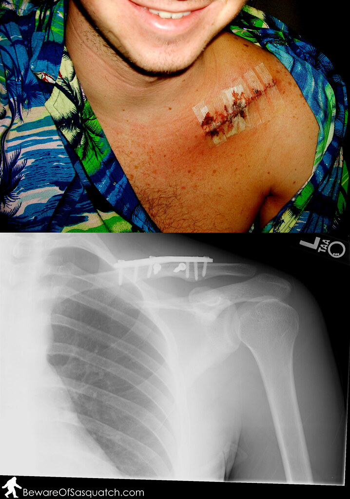 1 plate and 8 screws later, my collar bone is well on it's way to healing!