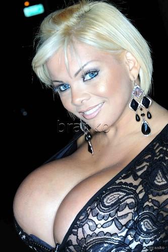 Sheyla Hershey, after breast implants
