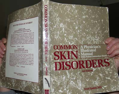 CommonSkinDisorders