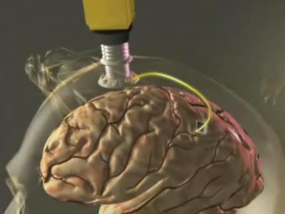 brain0405agy1