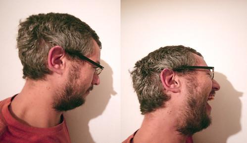 Dos perfiles (365-35)