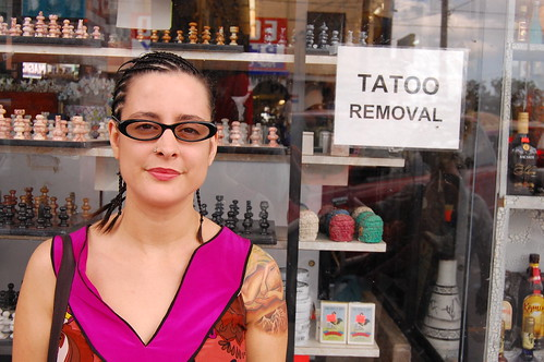 Tattoo Removal :  you can get tattoos, and you can get them removed.