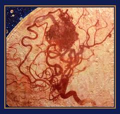 planet AVM (jorlam) Tags: art painting brain xray anatomy planet vascular angiogram imagetransfer avm malformation angio medicalillustration xrayart arteriovenous medicalart