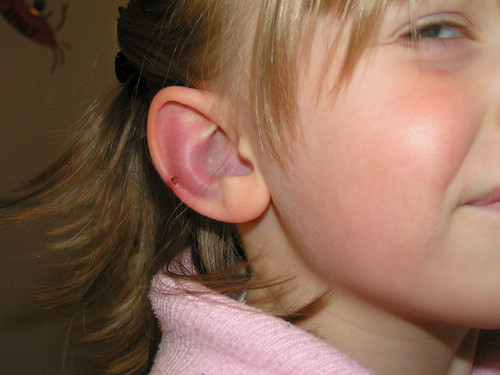 Thick ear