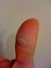 止血後の親指