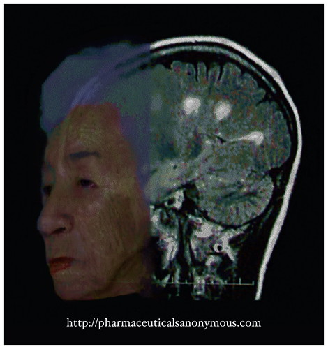 elder MRI lesions 1500 pa