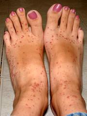 Allergic rash