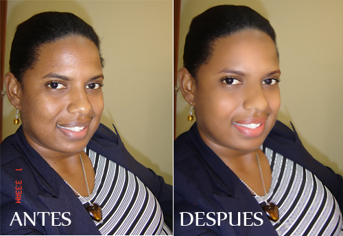 antes y despues de sonya