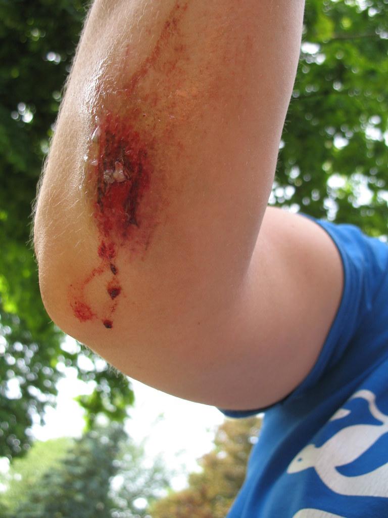 My First Bike Crash