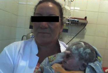 Nace un bebe con un solo ojo