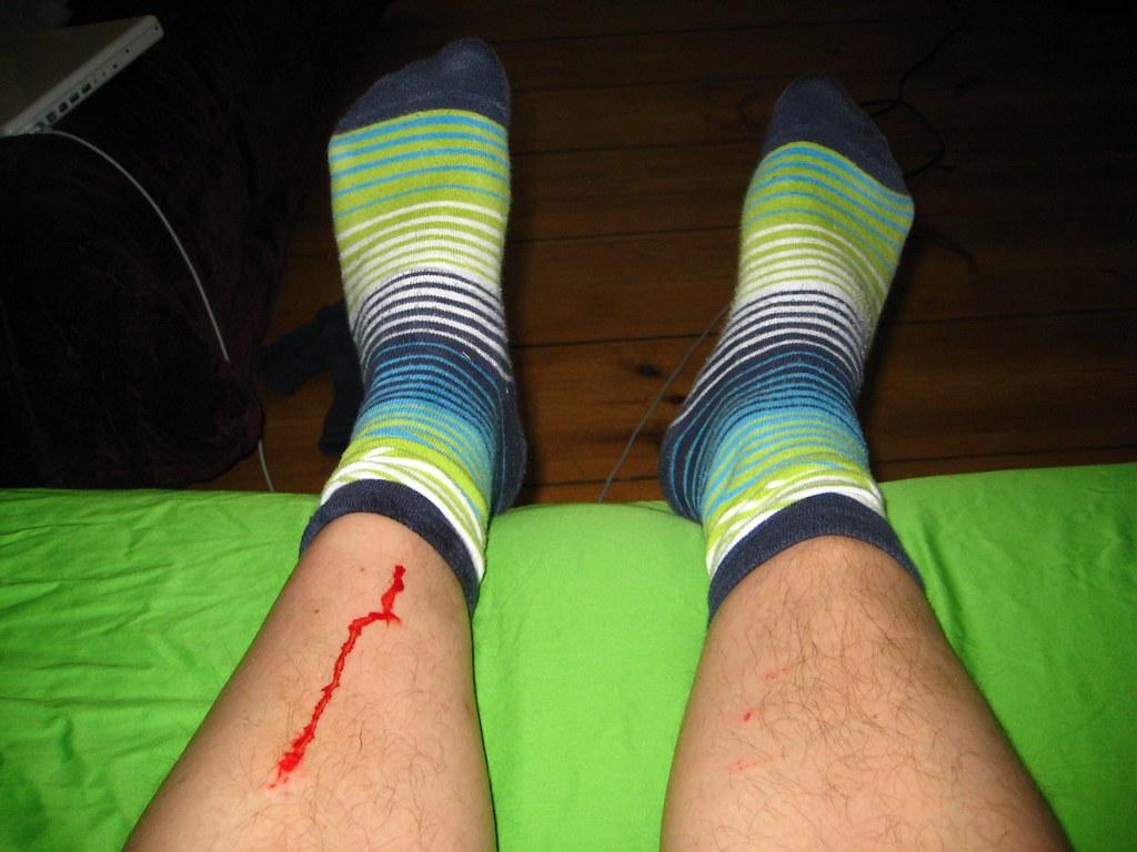 bleeding socks