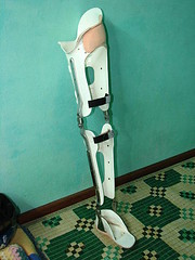Trang's Ischial Weight Bearing Brace (valockett) Tags: vietnam brace polio orthotics orthosis steadyfootsteps