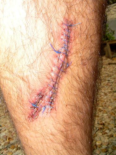 17 stitches of love.