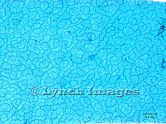 Sedum Epidermis EP1 (L) (Lynch Images) Tags: guard crassulaceae cells sedum stonecrop epidermis dicot stomata magnoliophyta angiosperm subsidiary epidermal magnoliatae