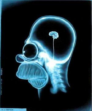 Homer cerebro
