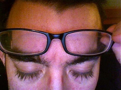 Derek's crazy mutant post-chemo eyelashes