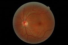 My left eye retina