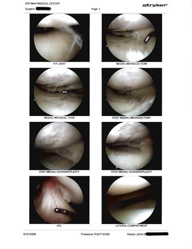 knee scan