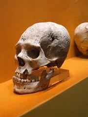 Cranial Deformation (Travis S.) Tags: museum mexico skull ruins hole teeth agujero oaxaca bone museo surgical hueso cranium montealban dientes mandible deformation montealbán cráneo deformación whitemountain trepanation mandíbula trepanación quirúrgica
