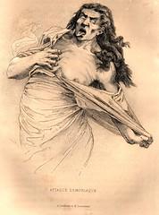 illustration du livre Hystéro-épilepsie de Paul Richer 1881