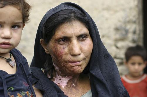Afghan.bomb.injury