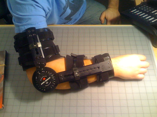 A white person's right arm in a (self-described) terminator-esque arm brace.  It has thick black straps supporting the upper arm, a huge dial on the elbow, and more thick straps on the lower arm