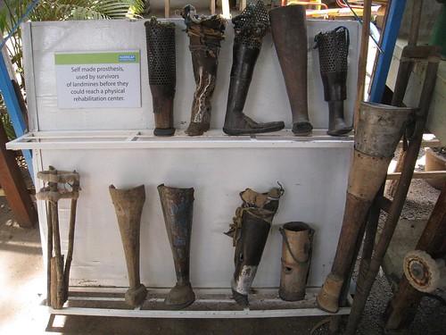 Self-made prosthesis