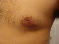 1 year post op left side 2 (p_12345_p) Tags: male breasts texas nipples boobs chest abnormal gynecomastia fulffy 1yearpostopdrweinerfromhouston