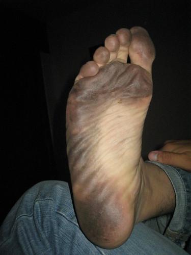 Pies descalzos pies soles fotos