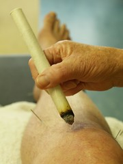 acupuncture on my knee (Michiel Thomas) Tags: flowers flower fleur fleurs photographer injury blumen explore needles knee acupuncture blume fotograaf blessure acupunctuur naalden moxa explorephotos inexplore myphotosinexplore explorepics michielthomas mypictureinexplore zwareblessure myphotoinexplore mypicturesinexplore