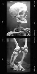 Dwarf skeleton (Prof. Jas. Mundie) Tags: blackandwhite bw paris france film monochrome monster museum analog 35mm skeleton diptych kodak tmax dwarf monochromatic exhibit collection medical health freak 35mmfilm anatomy bones medicine monsters monstrosity preserved analogue prodigy oddity curiosity iledefrance disease specimen abnormal freaks pathology deformed parisfrance blancetnoir deformity freakofnature blackandwhitefilm medicalmuseum mundie monstres abnormality schwarzweis copyrightprotected parisfr 400tmy dwarfism congenitaldeformity aplusphoto jamesmundie comparativeanatomy musedupuytren jamesgmundie profjasmundie cabinetofwonders bianceenero morbidanatomy anatomycollection teratology geneticanomaly blanceynegro jimmundie arsmedica fixedshadows copyrightjamesgmundieallrightsreserved