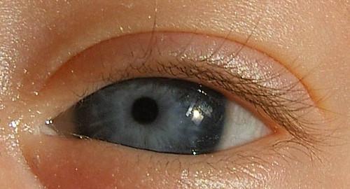 Auge des Kindes