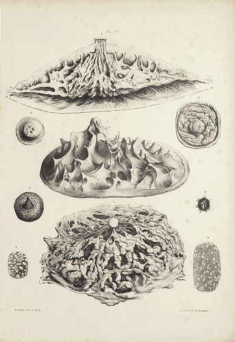 Ligaments Suspensoria and Sections (Cooper, 1840)